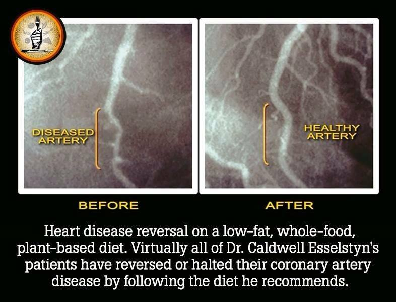 plant based diet clears arteries