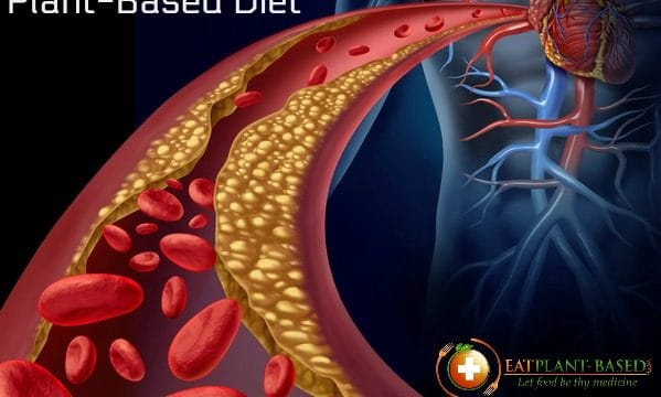 Only Diet Proven to Reverse Heart Disease: Whole Food Plant-Based Nutrition